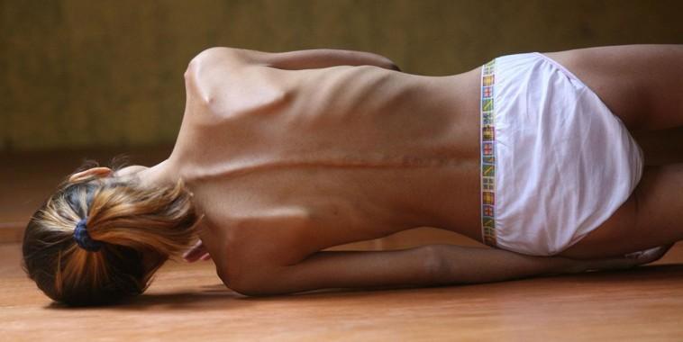 Michela-Marzano-L'anoressia-non-è